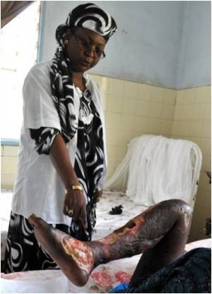 Lifestyle-Senegal-women-health-95264