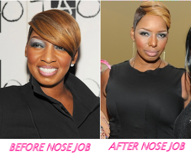 NENE-LEAKES-NOSE-JOB
