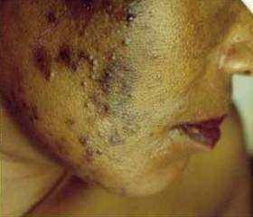skin-bleaching