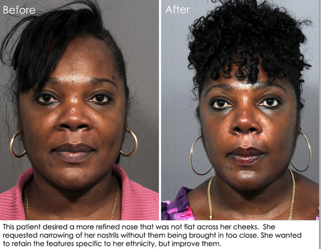 Woman of African descent narrow nose operation