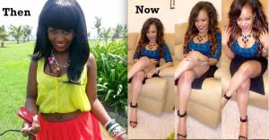 Vera Sidika before and after bleaching her skin